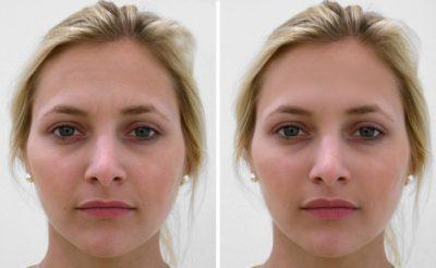 Липофилинг лица реабилитация по дням фото