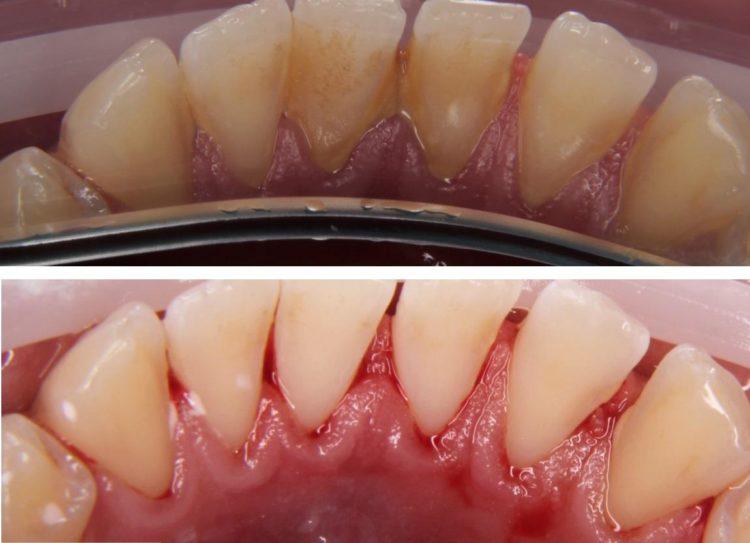 Плазмолифтинг десен в стоматологии