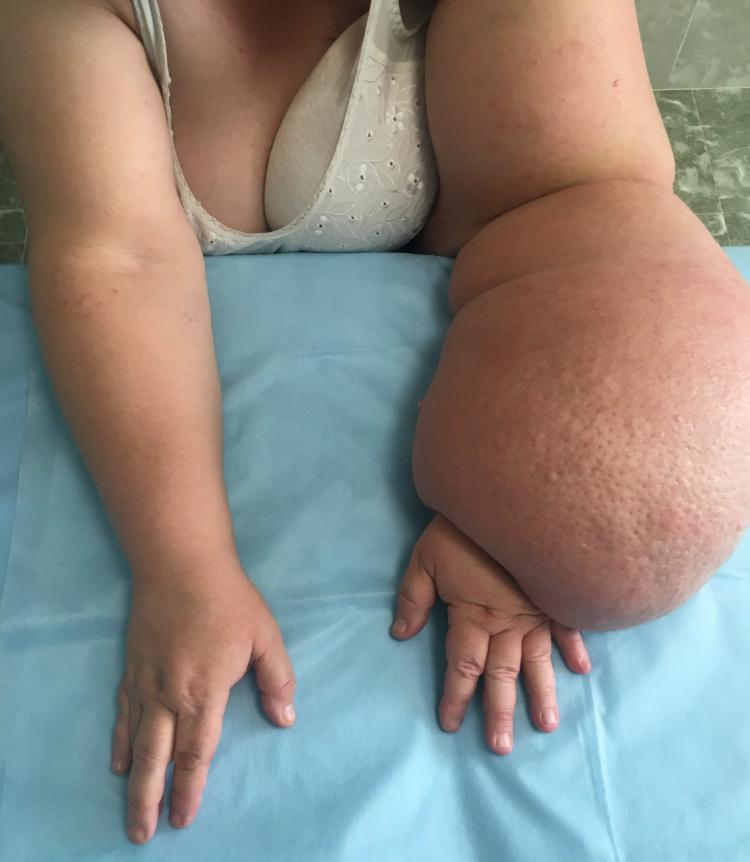 Болит рука после мастэктомии что делать