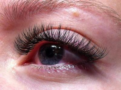 Ожог глаз клеем или чем опасно для зрения наращивание ресниц